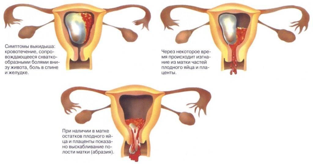 Последствия неполного медикаментозного аборта