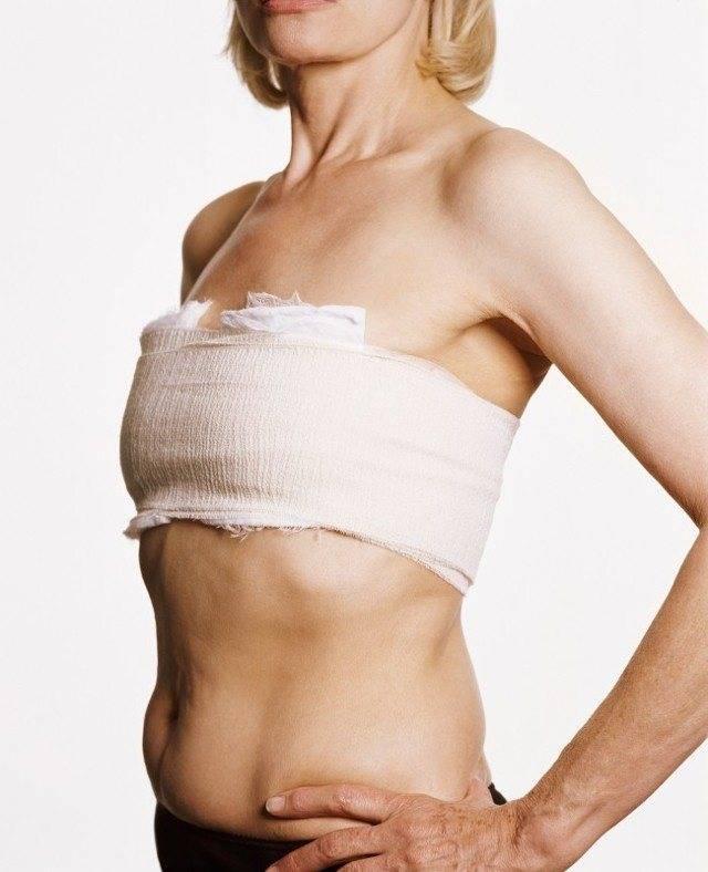 Аппаратная подтяжка груди |лазерная подтяжка грудных желез