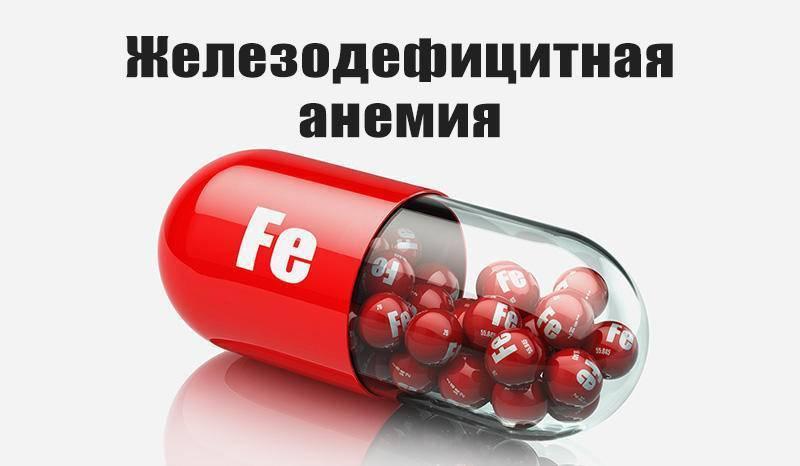 Железодефицитная анемия: основные симптомы и методы лечения у взрослых и детей