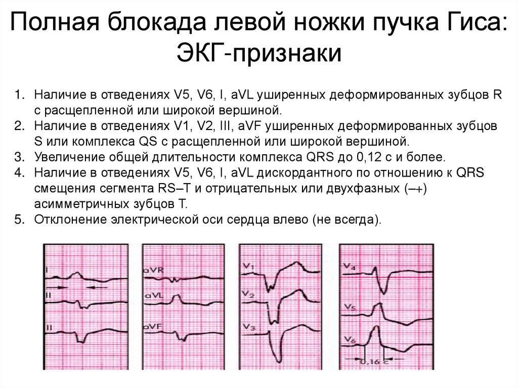 Заболевания сопровождающиеся нарушением сердечного ритма и проводимости