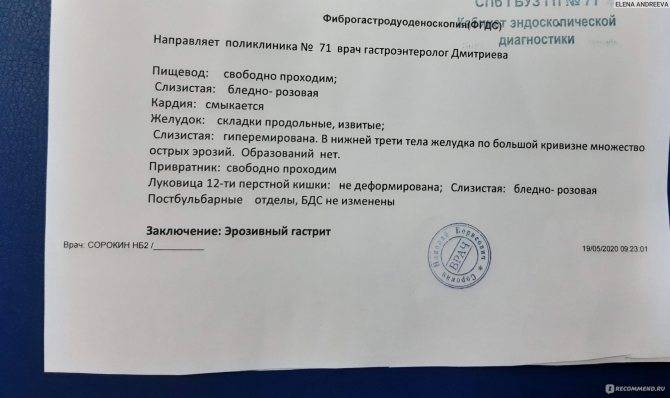 Гастроскопия под наркозом — 7400 руб. в москве