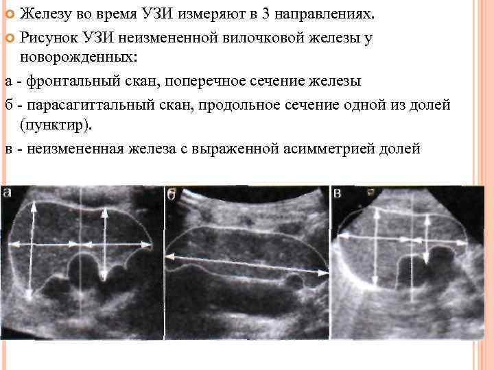 Узи вилочковой железы: подготовка, как делают, что показывает исследование