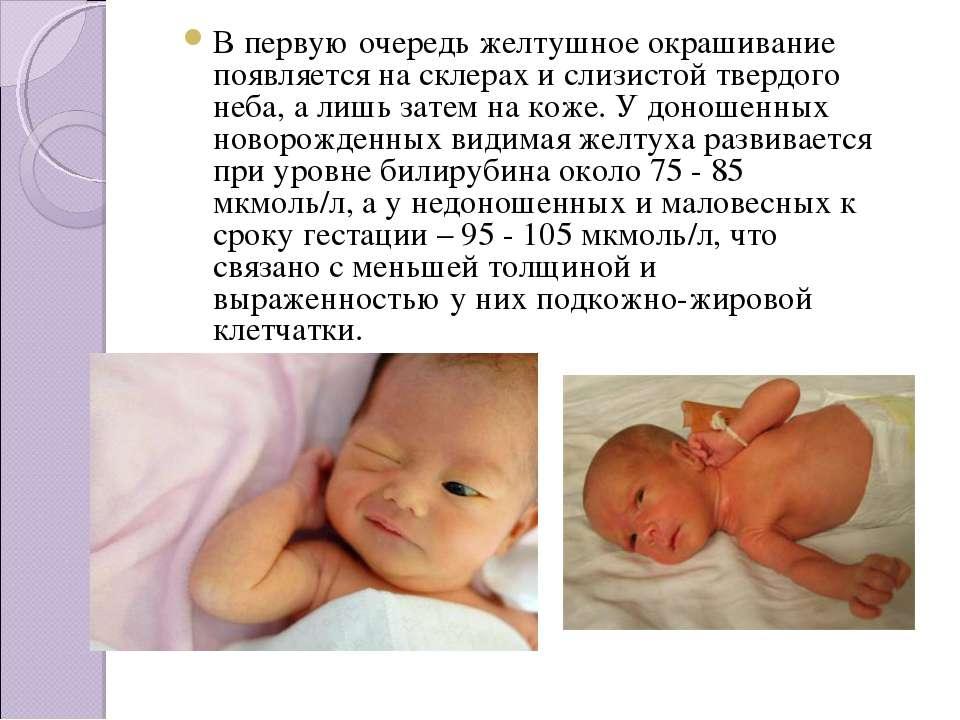 Маловесные дети. первая часть - страна мам