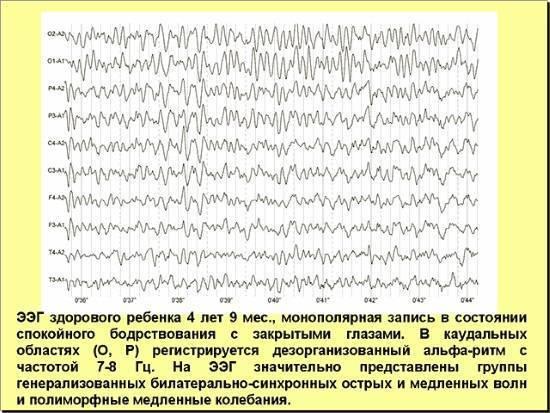 Электроэнцефалограмма - что это, как и когда ее делают - общая медицина