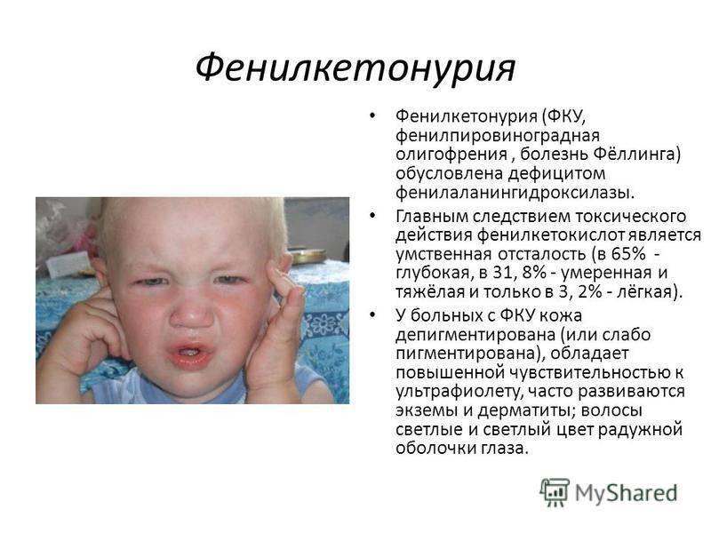 Олигофрения (идиотия, имбецильность, дебильность), симптомы и лечение олигофрении