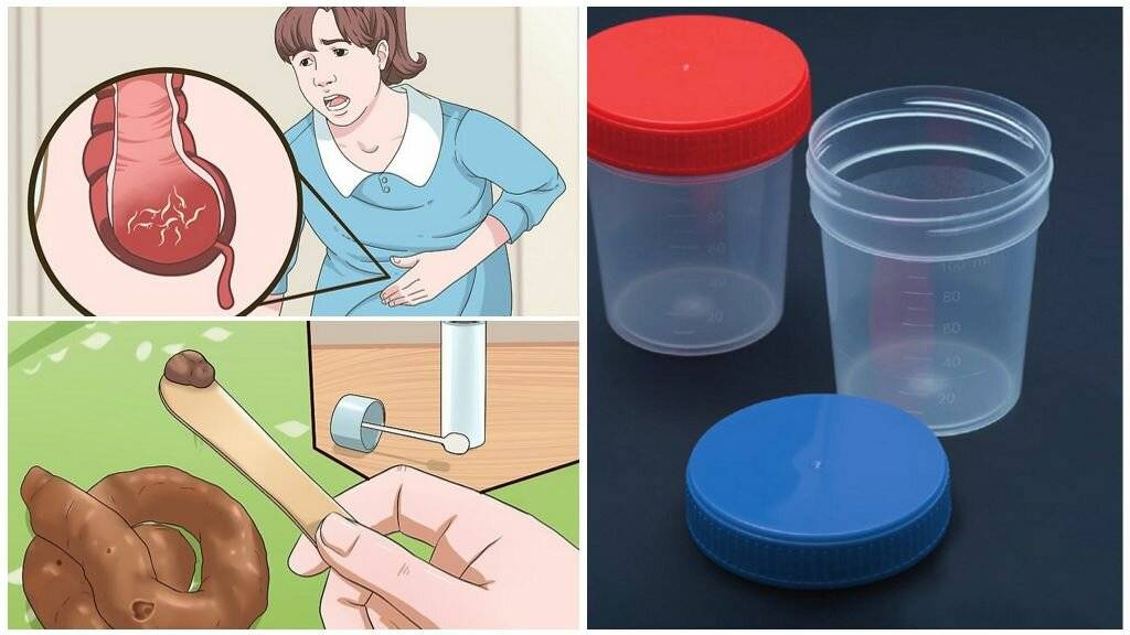 Анализ кала на яйца глист: как правильно сдавать - вся подробная информация