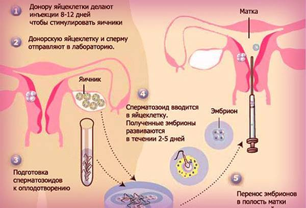 Инсеминация (искусственная инсеминация, внутриматочная инсеминация)