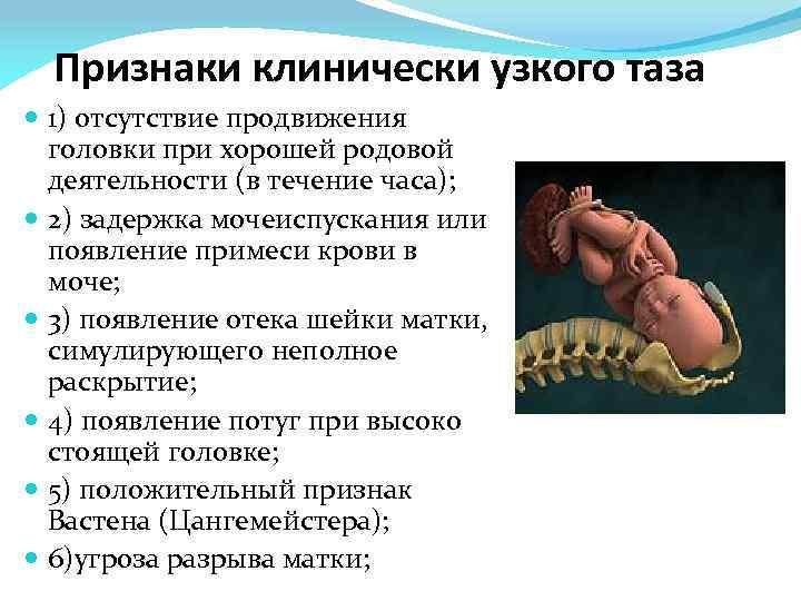 Расхождение костей таза при беременности, «юнона» - детская клиническая больница г. улан-удэ