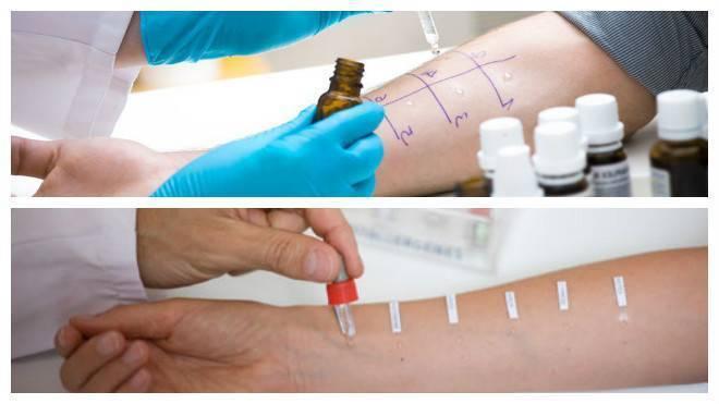Кожные пробы - диагностика аллергии у детей