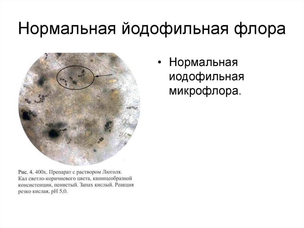 Йодофильная флора в кале у ребенка - норма и причины превышения