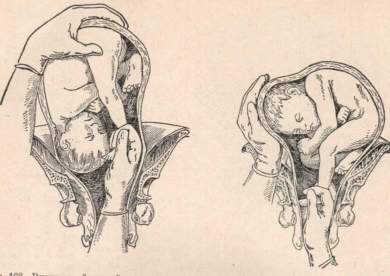 Кесарево при тазовом предлежании - когда и на каком сроке делают операцию