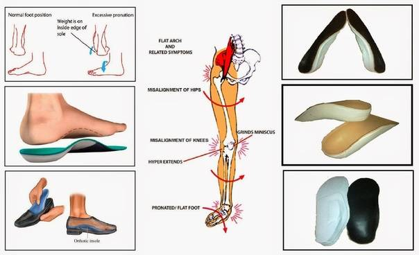 Ортопедические стельки – как правильно выбрать, показания к применению