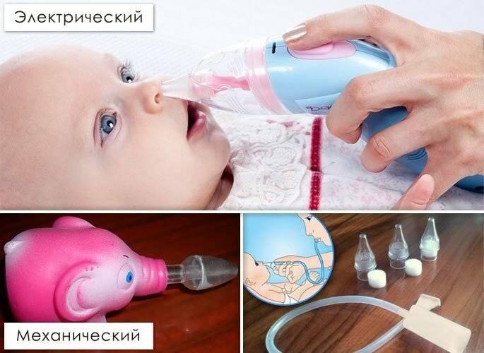Методика удаления козявок у новорожденных