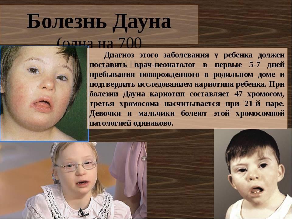 Мозаичный синдром дауна: особенности болезни и пациентов с таким диагнозом, диагностика и лечение, советы родителям