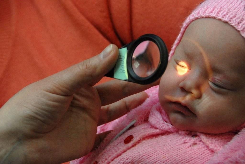 Что такое гипертензивная ретинопатия и почему она возникает?