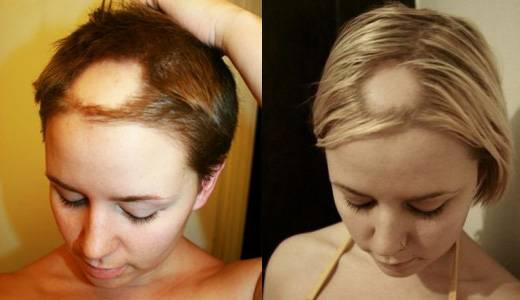 Что делать, если выпадают волосы после родов?