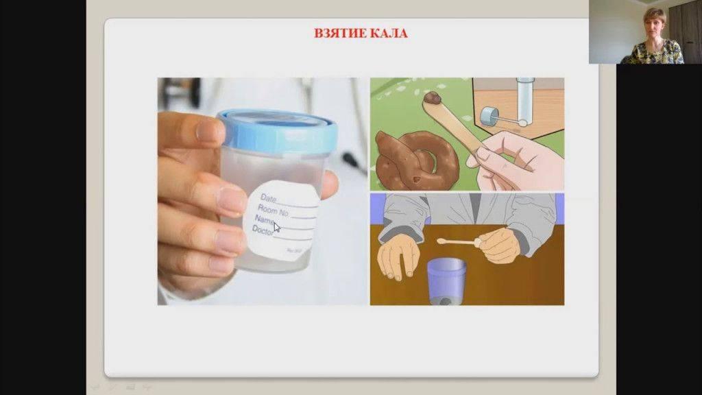 Советы, как собрать кал на анализ у грудничка мальчика и девочки