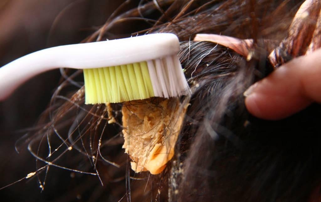 Как убрать жвачку с волос в домашних условиях: как отлепить жевательную резинку с головы ребенка и взрослого без ножниц?