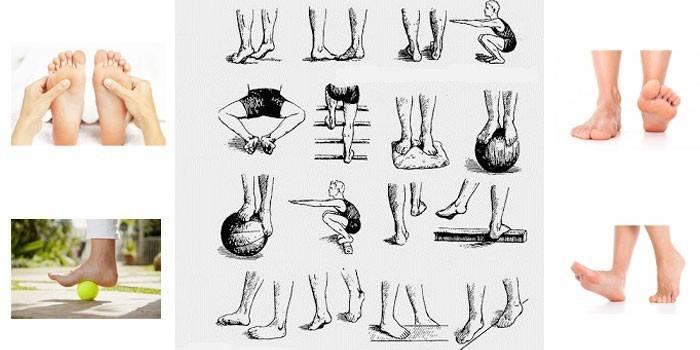 Лфк при плоскостопии » спортивный мурманск