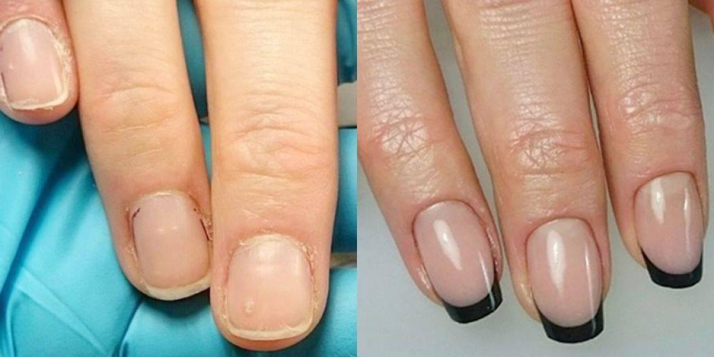 Можно или нет наращивать ногти при беременности?