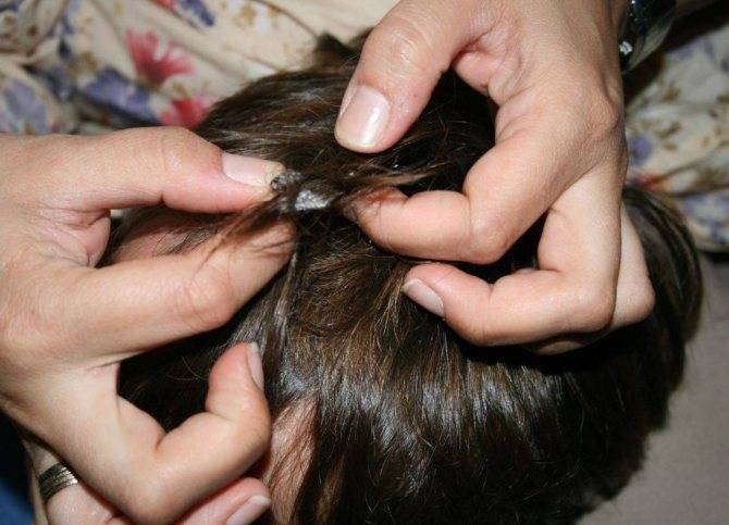 Жвачку с волос - как убрать своими руками? способы как убрать с волос жевательную резинку (125 фото)