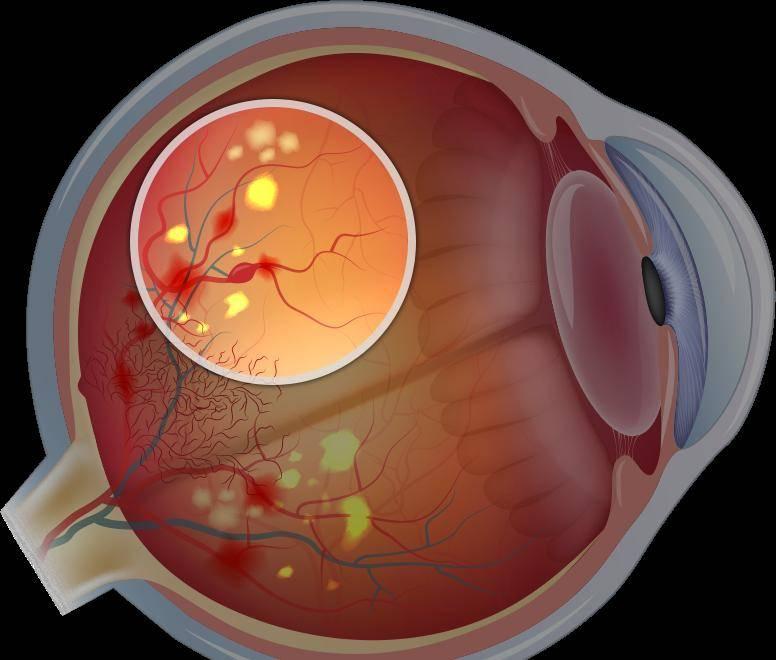 К каким осложнениям приводит ретинопатия недоношенных?