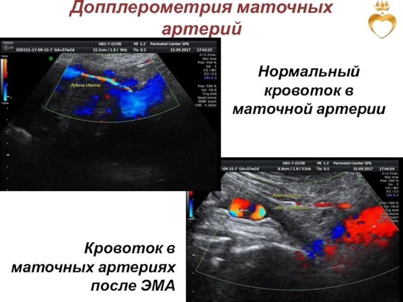 Современный подход к ведению беременности с замедлением роста плода (зрп). цпо и что нового в допплерометрии.