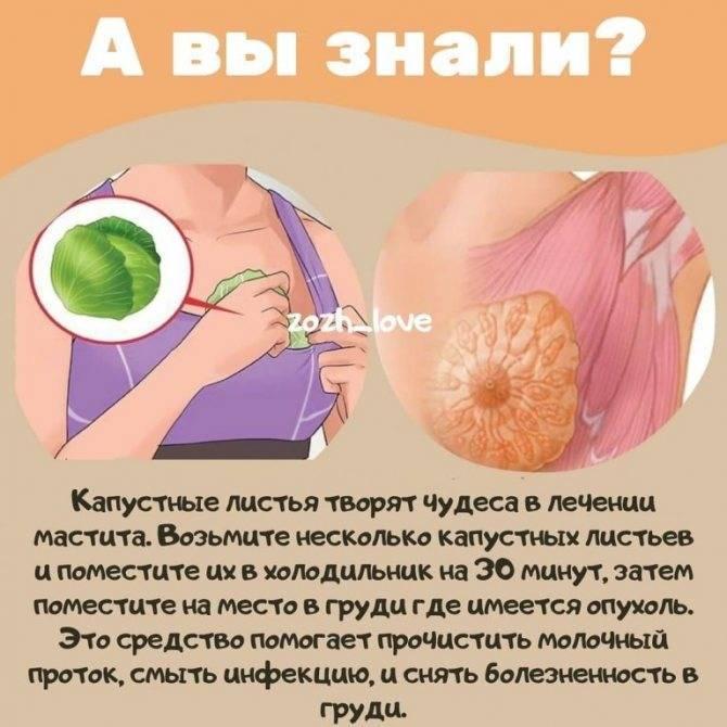 Компресс из капустного листа при мастопатии: полезные рецепты
