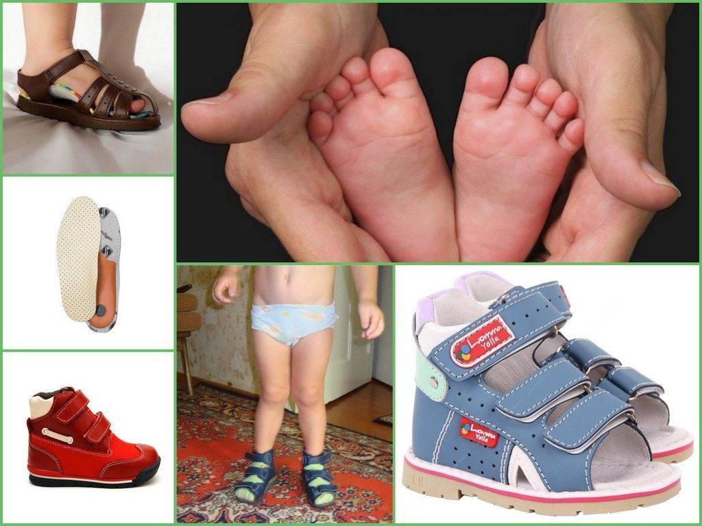 Лечение вальгусной деформации стопы у детей в владимире — причины, диагностика, симптомы