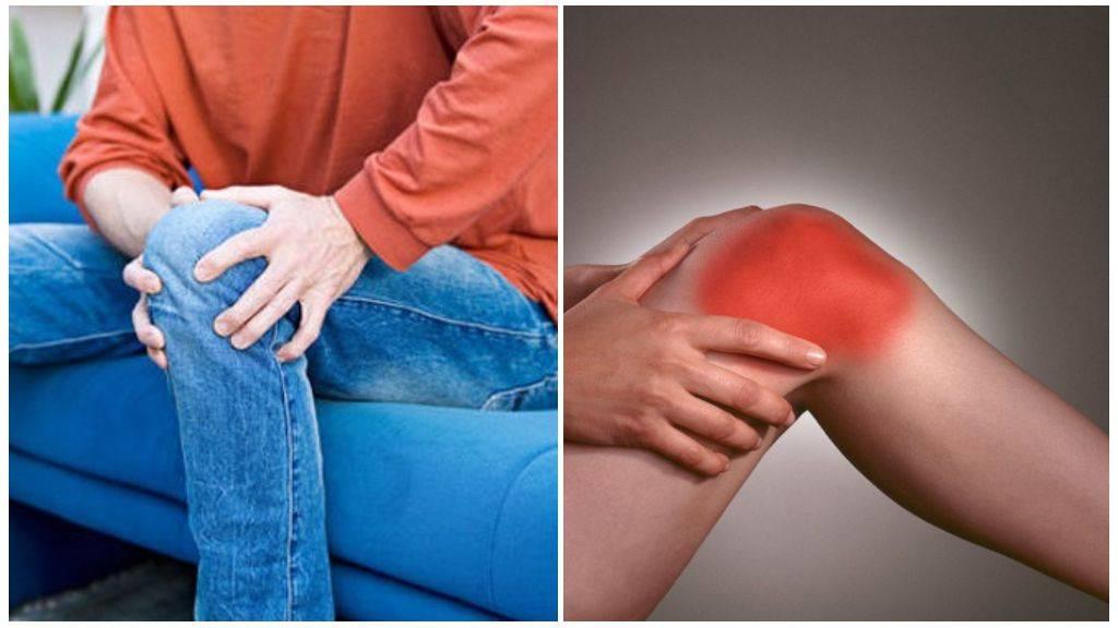 Боль в колене при приседании на корточки: лечение в москве