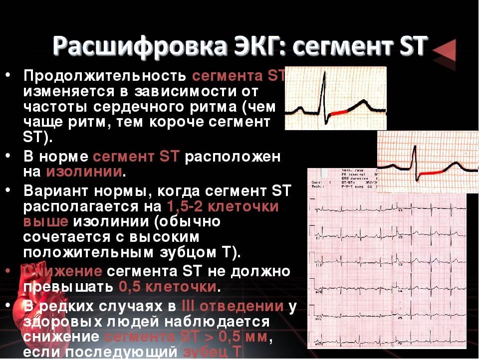 Зубцы, сегменты и интервалы сердечного цикла