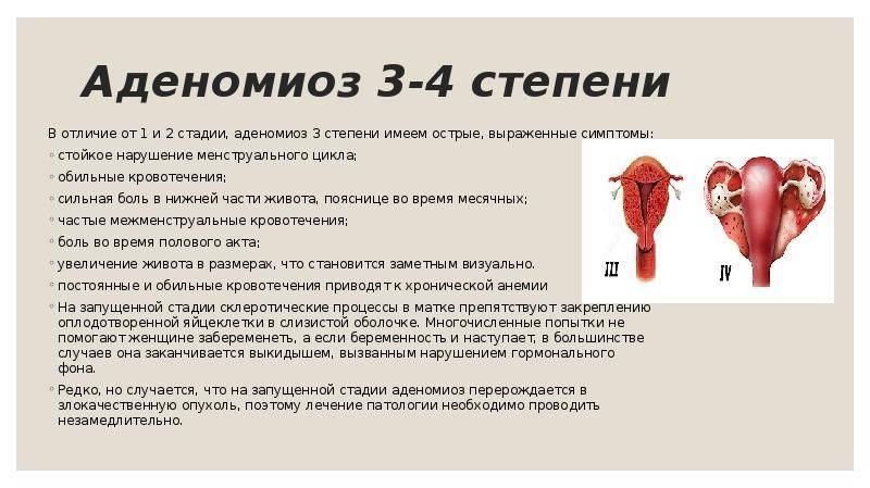 Кровотечение при миоме матки: советы гинеколога