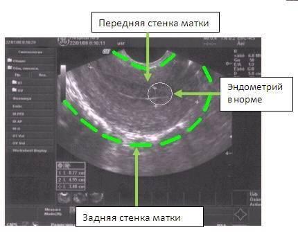 Гипертонус мышц у грудничка — причины, симптомы, лечение