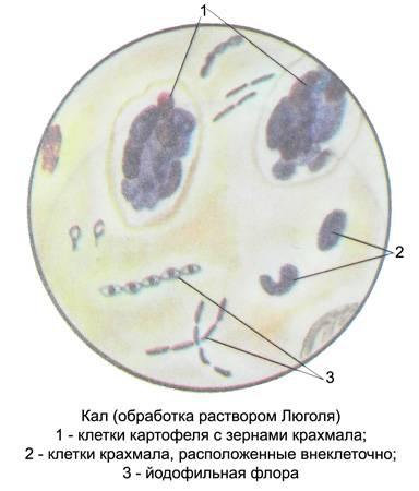 Обнаружена йодофильная флора в кале у ребенка — стоит ли паниковать родителям