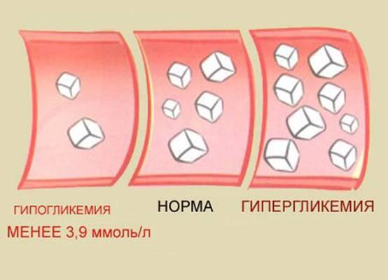 Кома при сахарном диабете