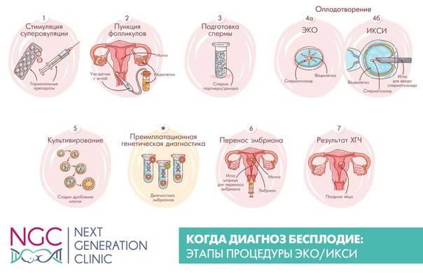 Что нужно знать перед эко  - статья репродуктивного центра «за рождение»