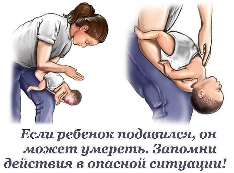 Что делать, если ребенок подавился   первая помощь