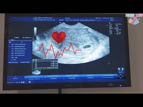 Сердцебиение плода на узи: когда слышно сердце ребенка, на какой неделе?