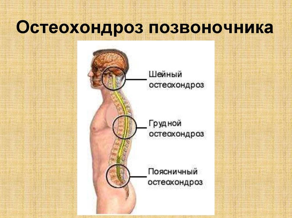 Остеохондроз поясничного отдела позвоночника: что это такое, причины, симптомы и способы лечения - московский центр остеопатии