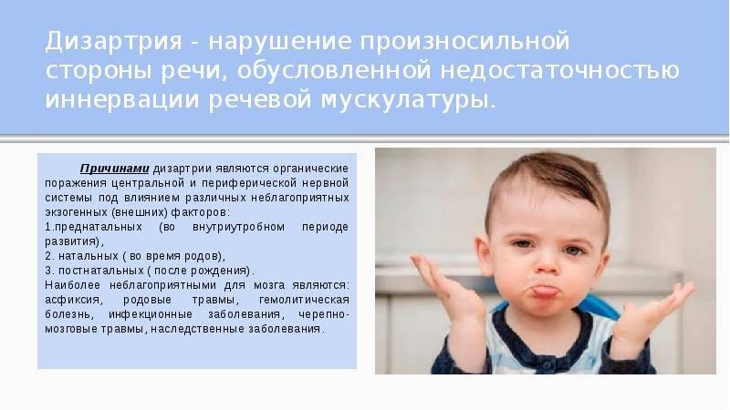 Бульбарная дизартрия у детей