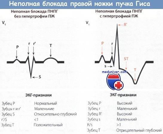 Блокада ножки пучка гиса, полная и неполная, правой и левой ножки - опасность заболевания и лечение - docdoc.ru