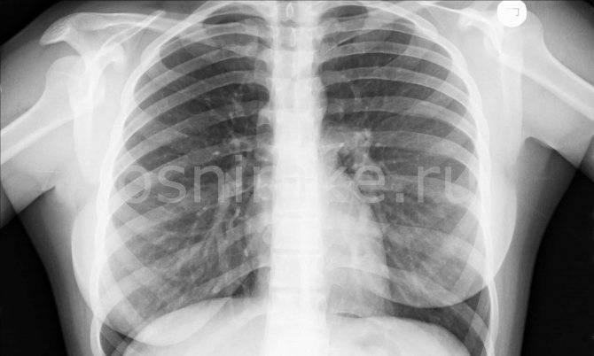 Рентген и флюорография при лактации: риски и последствия