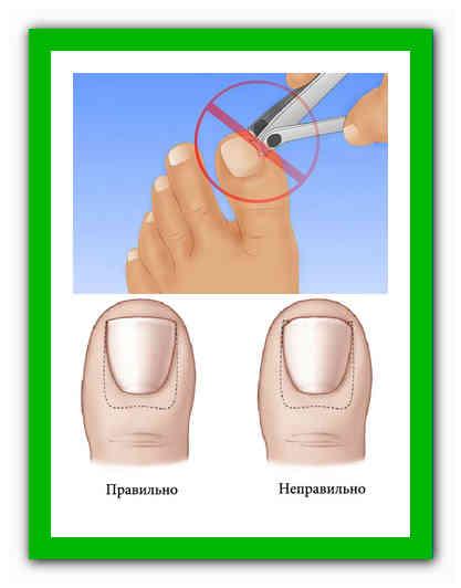 Как подстричь ногти новорожденному – как и когда стричь ногти грудничку