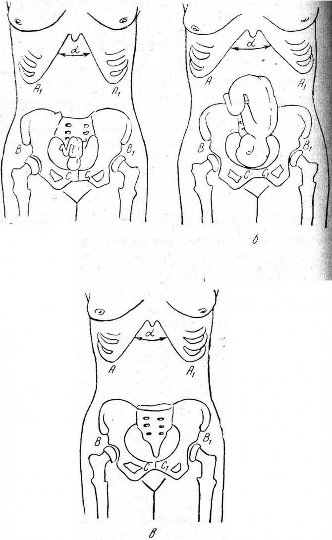 Амниоцентез при беременности: на каком сроке делают, показания к процедуре