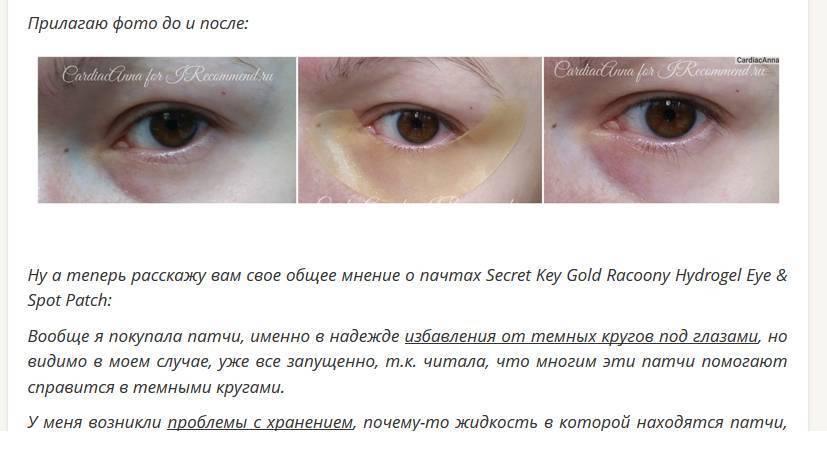 Темные круги под глазами: болезнь или усталость?