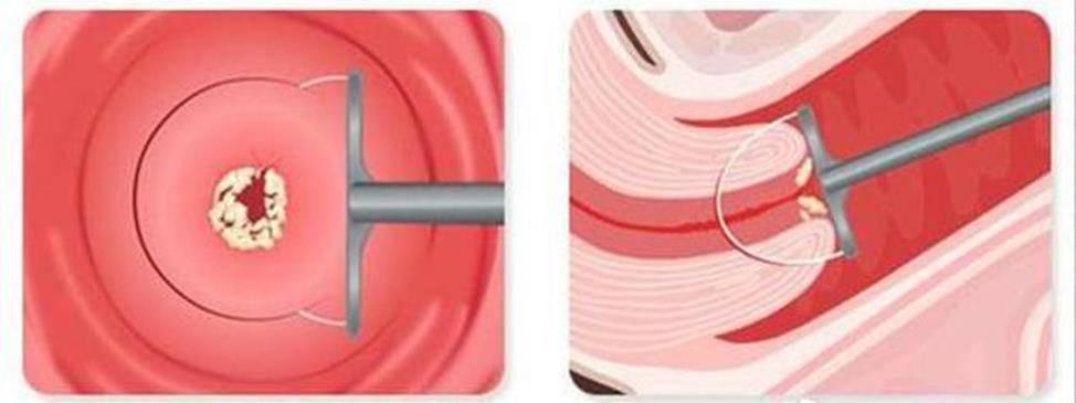 Деформация шейки матки (послеродовые разрывы шейки матки)