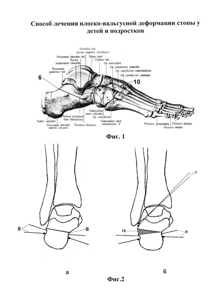 Особенности хирургической коррекции посттравматической вальгусной деформации голеностопного сустава сопровождающейся остеоартрозом у пациентов с плосковальгусной деформацией стоп   кафедра травматологии и ортопедии