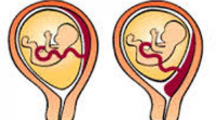 Расположение плаценты: что нужно знать