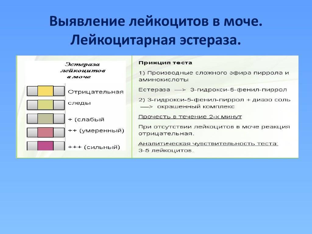 Анализ мочи на лейкоциты