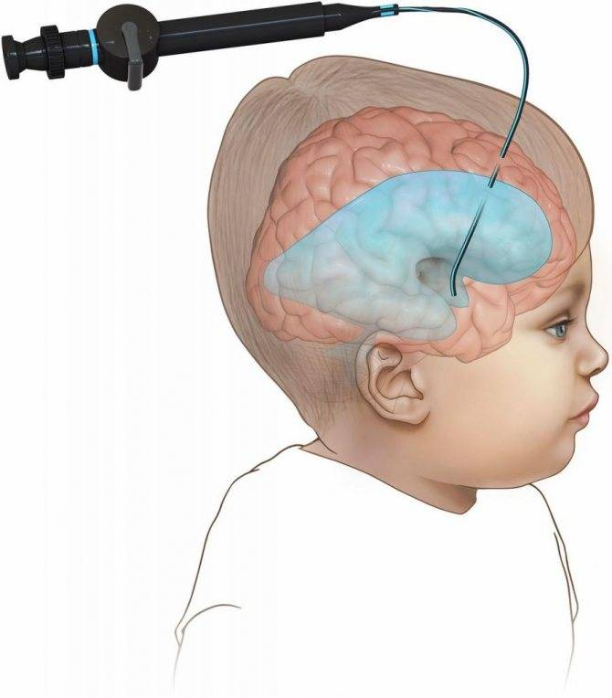 Расширение желудочков головного мозга у новорожденных